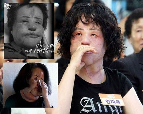 """""""Thảm họa dao kéo"""" xứ Hàn ngại ra đường - 5"""
