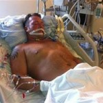 Sức khỏe đời sống - Bệnh nhân sợ hãi tỉnh dậy khi phải hiến tạng