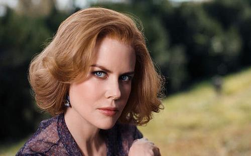 Nicole Kidman bầm dập trên phim trường - 4