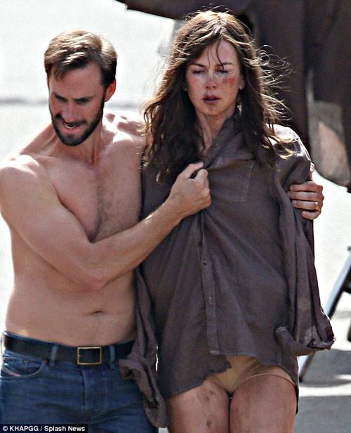 Nicole Kidman bầm dập trên phim trường - 2