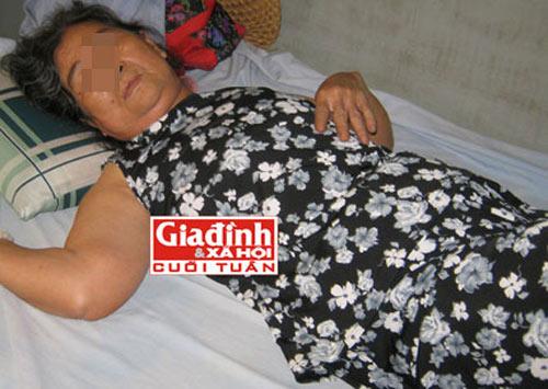 Cuộc đời chìm nổi của cụ bà 27 năm mang thai đá - 1