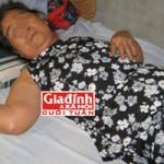 Sức khỏe đời sống - Cuộc đời chìm nổi của cụ bà 27 năm mang thai đá