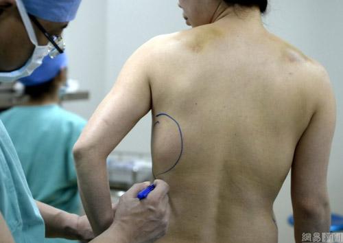 Cô gái Trung Quốc suýt mất mạng vì vỡ túi độn ngực - 2