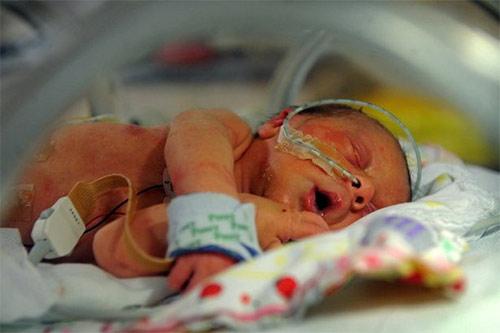 Bé gái mới sinh chỉ có nửa trái tim - 1