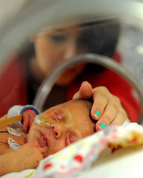 Bé gái mới sinh chỉ có nửa trái tim - 3