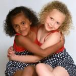 Phi thường - kỳ quặc - Những cặp sinh đôi khác màu da cực hiếm