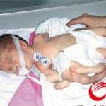 Phi thường - kỳ quặc - Em bé 8 chân tay ở Trung Quốc