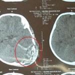 Sức khỏe đời sống - Bị ti vi đè vỡ sọ, bé 2 tuổi tử vong