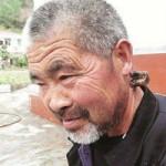 Phi thường - kỳ quặc - Ông già 62 tuổi mọc sừng ở gáy
