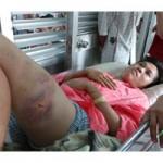An ninh Xã hội - Gãy chân vì bị cả gia đình bạn gái tra tấn dã man