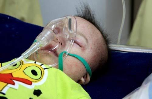 Những bệnh nào cần được tiêm phòng ở trẻ nhỏ - 2