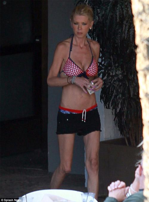 "Mẫu gợi cảm hóa ""thảm họa bikini"" - 1"
