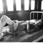 Tin tức trong ngày - Ấn Độ: Không được của hồi môn, chồng thiêu sống vợ