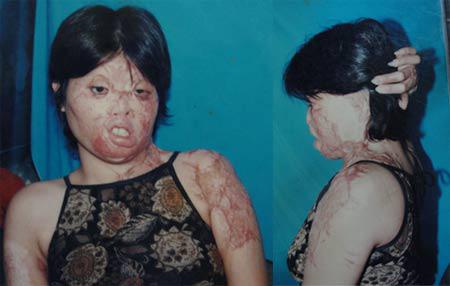 Hành trình 50 lần phẫu thuật của diễn viên bị chồng tạt axit - 2