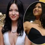 Làm đẹp - Trương Tử Lâm dính nghi án nâng ngực