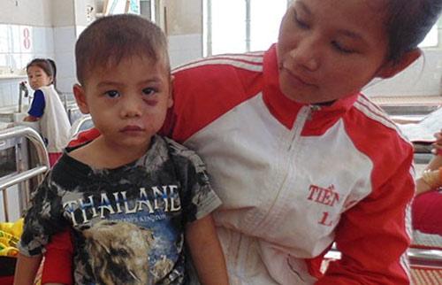 Bé trai ba tuổi bị cha dượng đánh dã man - 1