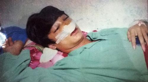Học sinh lớp 11 tố bị CSGT đánh vỡ xương mũi - 1