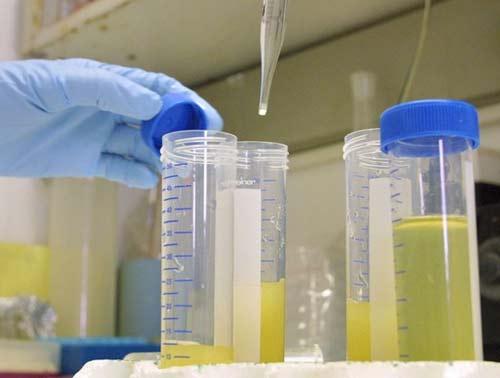 Nhận biết bệnh tật qua nước tiểu - 1