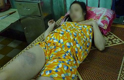 Đánh vợ bầm dập vì đi khám thai không xin phép - 1