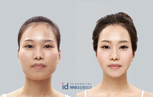 """Những """"chuẩn đẹp"""" kì cục ám ảnh người Hàn - 11"""