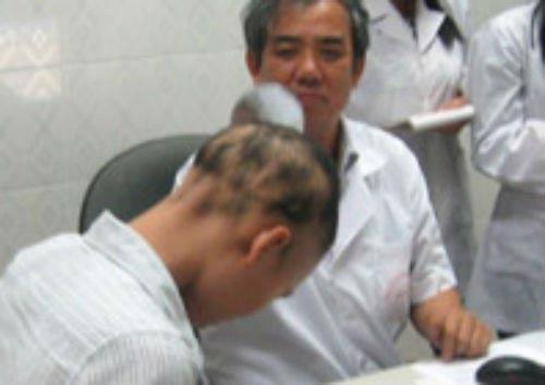 Bị tai nạn không chết, lông tóc tự nhiên rụng hết - 1