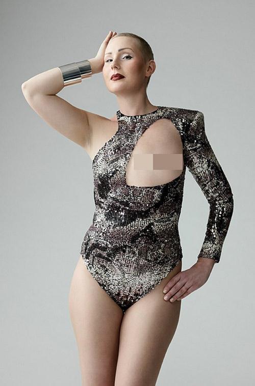 Ngỡ ngàng trước ảnh bikini của phụ nữ bị ung thư vú - 3