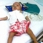 Bé 9 tháng tuổi bị sởi biến chứng vào phổi, não, thận