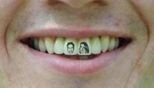 Xăm răng cho nụ cười cá tính - 1