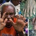 Sửng sốt tục cắt ngón tay để tưởng nhớ người chết