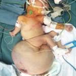 Sức khỏe đời sống - Cắt khối u quái nặng 2,6 kg cho trẻ sơ sinh