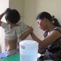 Cả mẹ lẫn con lây viêm gan A từ người giúp việc