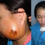 Sức khỏe đời sống - Cắt bỏ thành công khối u gây biến dạng khuôn mặt bé gái