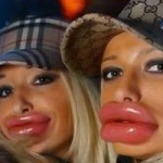Làm đẹp - Những đôi môi khiến mày râu gặp ác mộng