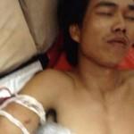Tin tức trong ngày - Quảng Ngãi: Đưa ngư dân bị đứt lìa tay về bờ cấp cứu
