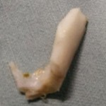 Sức khỏe đời sống - Nội soi mảnh xương lợn trong thực quản bệnh nhi
