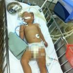 Tin tức trong ngày - Bé trai hơn 2 tuổi chấn thương sọ não do ngã cầu thang