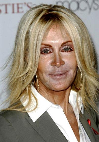 Khuôn mặt loang lổ như hề của sao Hollywood - 9