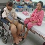 """Sức khỏe đời sống - Thiếu nữ mắc bệnh """"chân voi"""" hiếm gặp"""