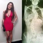 Bạn trẻ - Cuộc sống - Cô gái chịu đau để phẫu thuật sống lưng, nâng ngực