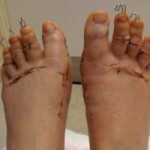 Sức khỏe đời sống - Cận cảnh cắt ngón chân để đi vừa giày cao gót