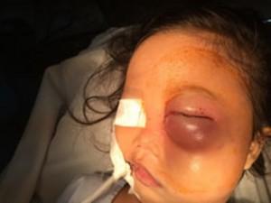 Cứu đôi mắt bé gái bị con khỉ 17 kg cắn