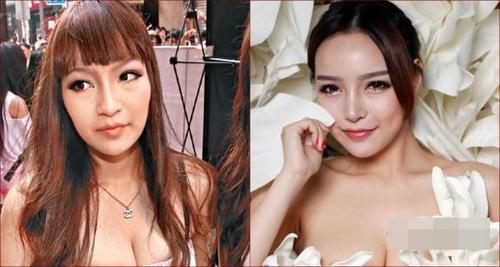 """Mẫu nữ Hong Kong khoe kiếm """"bộn"""" sau khi thẩm mỹ - 2"""