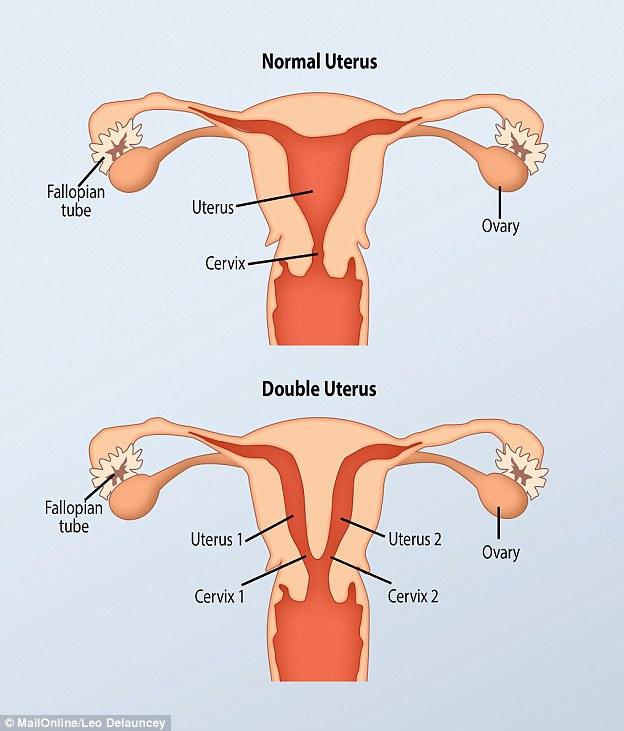 Kỳ lạ người phụ nữ có 2 âm đạo nhưng chỉ có 1 quả thận - 2