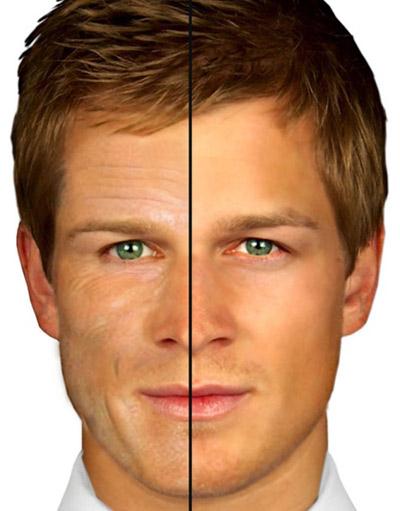 Trẻ hóa da hiệu quả dành cho nam giới - 1