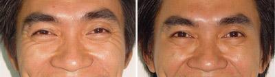Trẻ hóa da hiệu quả dành cho nam giới - 4