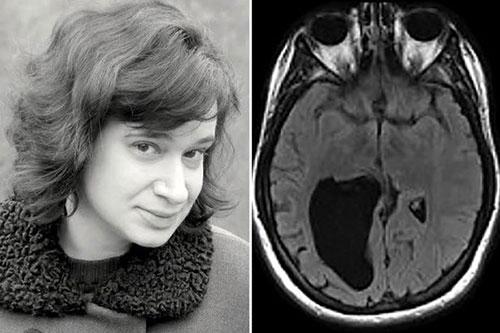 """Kì lạ người phụ nữ bị """"thủng"""" một lỗ lớn trong não - 1"""