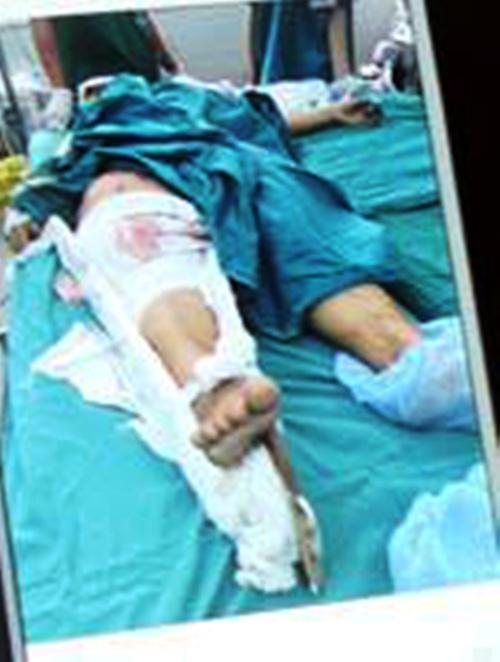 Xe ben đâm sập nhà dân: Ở nhà cũng bị xe tông chết - 3
