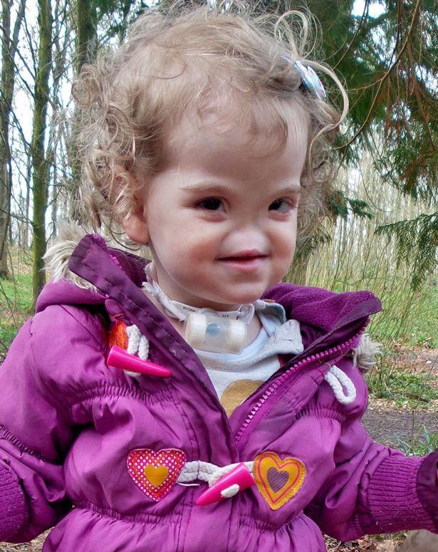 Kỳ diệu ca phẫu thuật 3D cho cô bé sinh ra không có mũi - 1