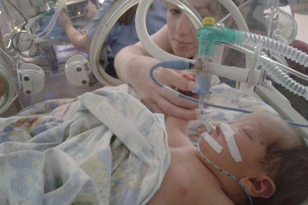 Kỳ diệu ca phẫu thuật 3D cho cô bé sinh ra không có mũi - 2