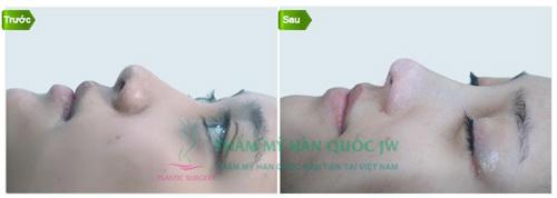 Mũi S line đẹp trên từng milimet ngay sau phẫu thuật - 4